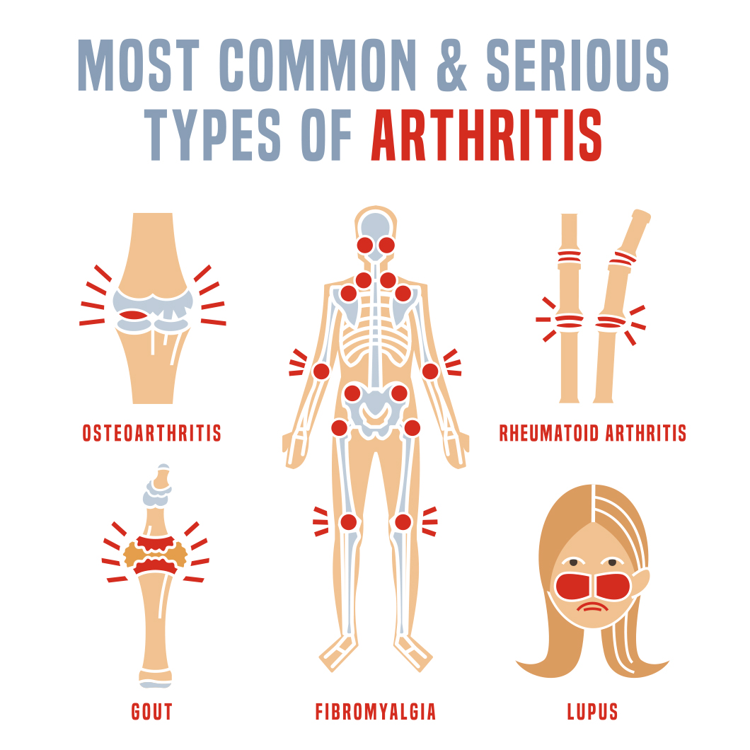 Steps You Can Take to Reduce Your Risk Of Developing Some Types Of Arthritis